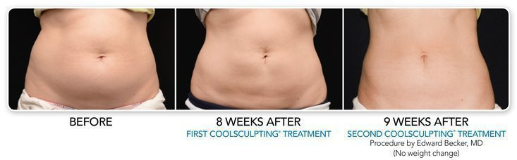 coolsculpting after 8 weeks