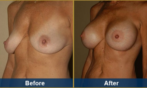 Breast Case 30