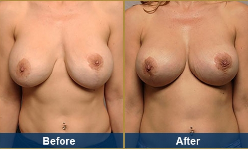 Breast Case 4