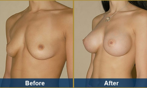 Breast Case 11