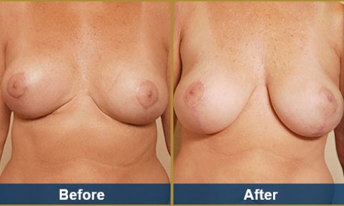 Breast Case 21