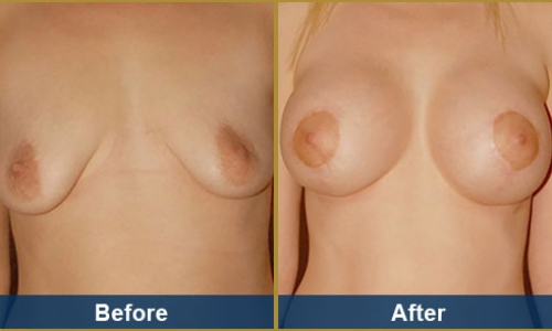 Breast Case 26