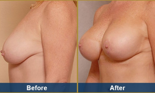 Breast Case 29