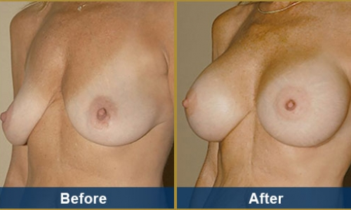 Breast Case 18