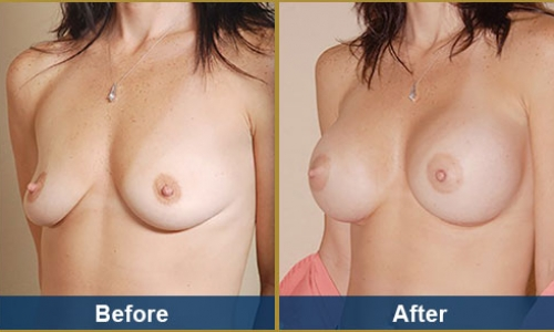 Breast Case 5
