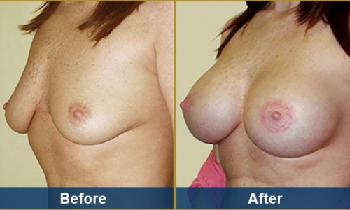 Breast Case 3
