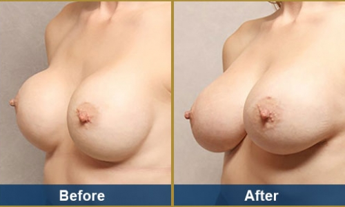 Breast Case 7