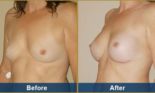 Breast Case 16