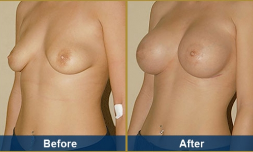 Breast Case 1
