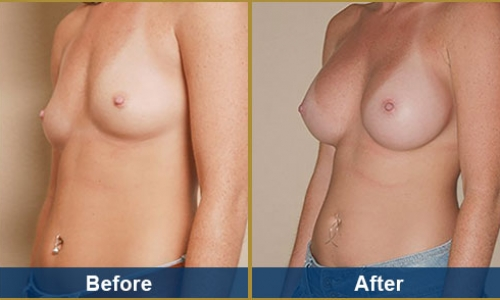 Breast Case 2