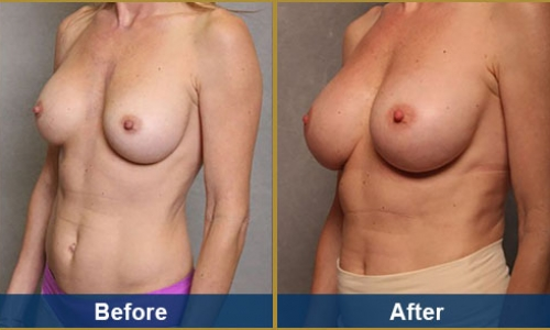 Breast Case 22