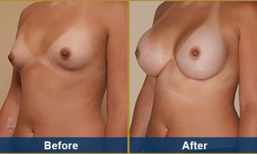 Breast Case 12