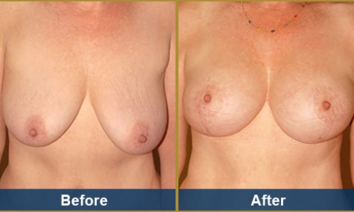 Breast Case 15