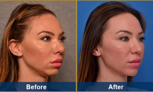 Rhinoplasty Case 3