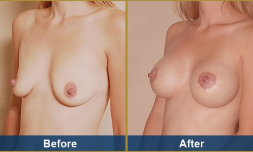 Breast Case 24