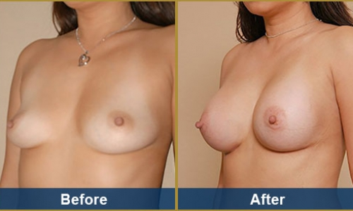 Breast Case 9