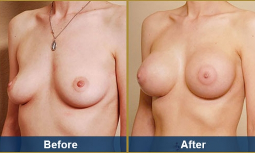 Breast Case 25