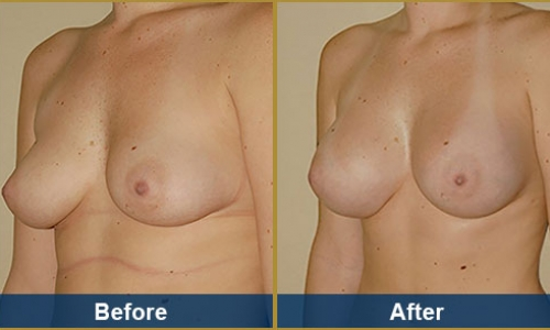 Breast Case 8