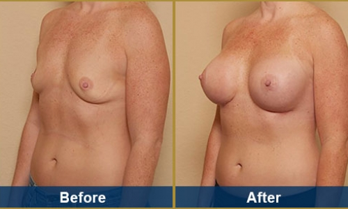 Breast Case 23