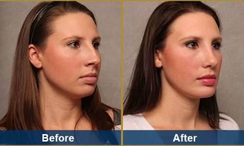 Rhinoplasty Case 5