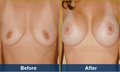 Breast Case 20