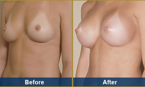 Breast Case 13