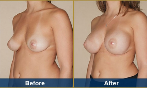 Breast Case 28