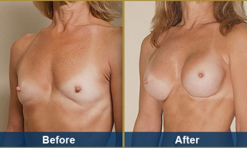 Breast Case 10