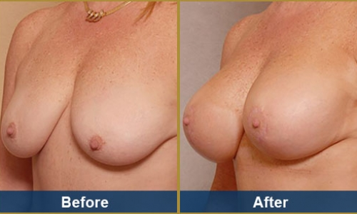 Breast Case 17