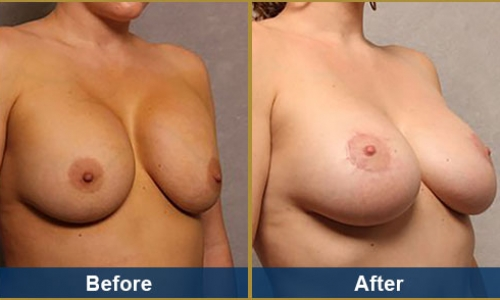 Breast Case 34
